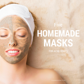 5 Homemade Masks For Acne Scars